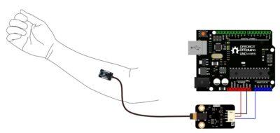 Schwerkraft: Analoger EMG-Sensor